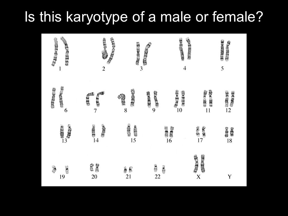 Is this karyotype of a male or female question here]